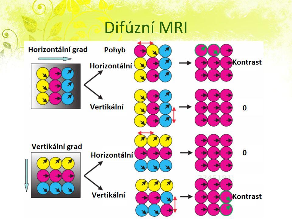 Difúzní MRI