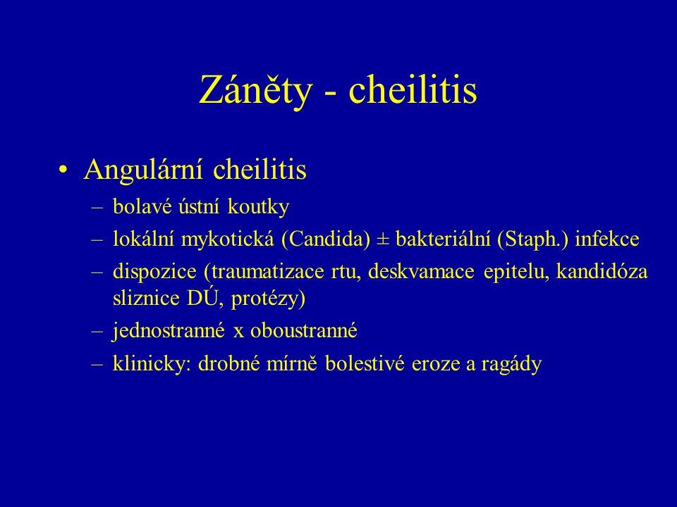 Záněty - cheilitis Angulární cheilitis bolavé ústní koutky