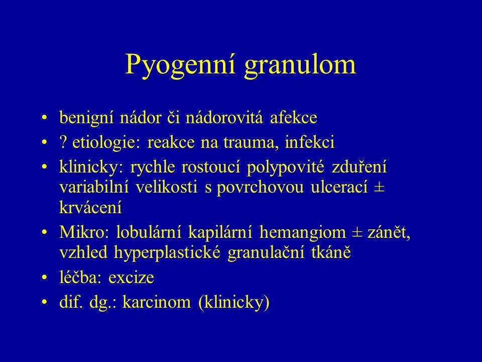 Pyogenní granulom benigní nádor či nádorovitá afekce