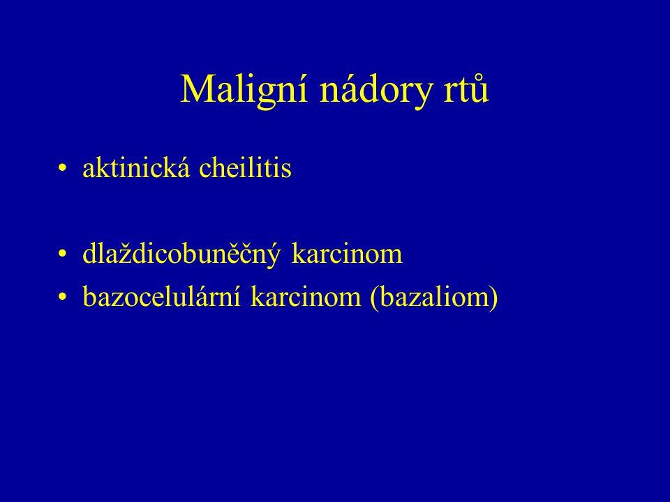 Maligní nádory rtů aktinická cheilitis dlaždicobuněčný karcinom