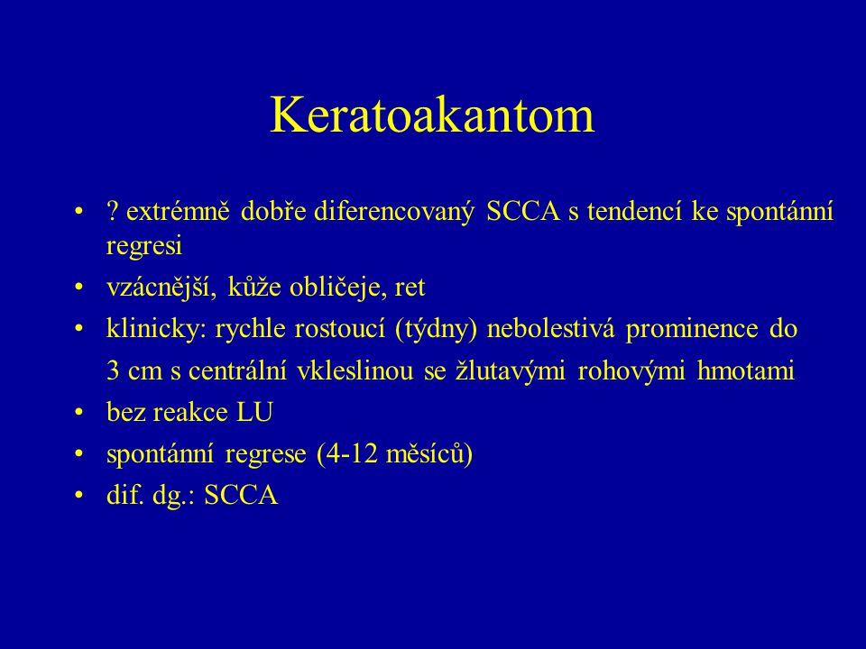 Keratoakantom extrémně dobře diferencovaný SCCA s tendencí ke spontánní regresi. vzácnější, kůže obličeje, ret.