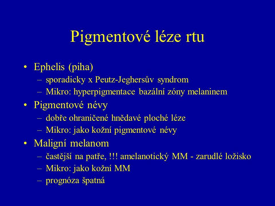 Pigmentové léze rtu Ephelis (piha) Pigmentové névy Maligní melanom