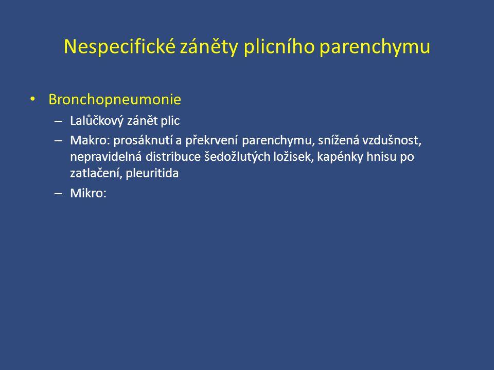 Nespecifické záněty plicního parenchymu