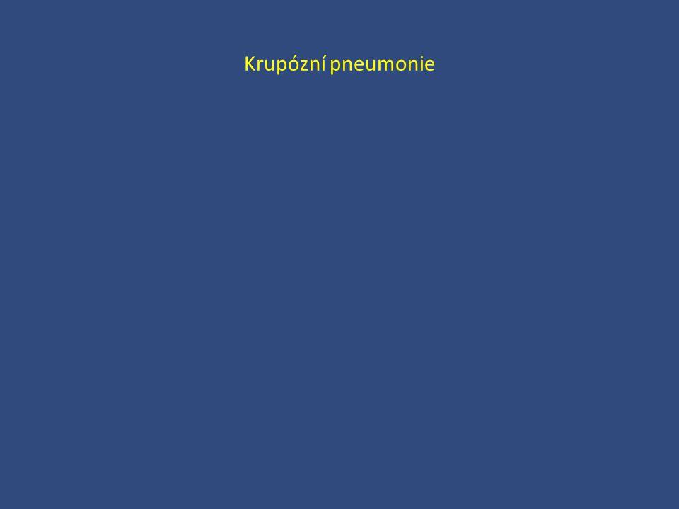 Krupózní pneumonie