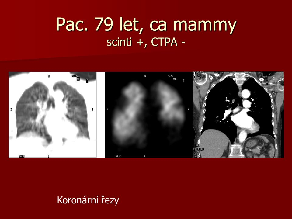 Pac. 79 let, ca mammy scinti +, CTPA -