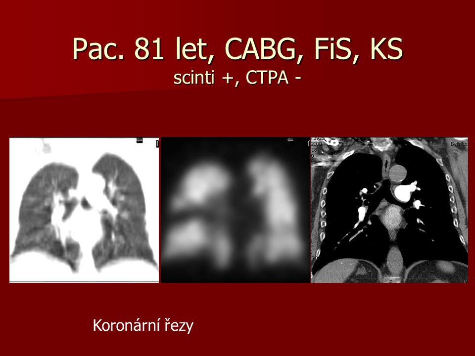Pac. 81 let, CABG, FiS, KS scinti +, CTPA -