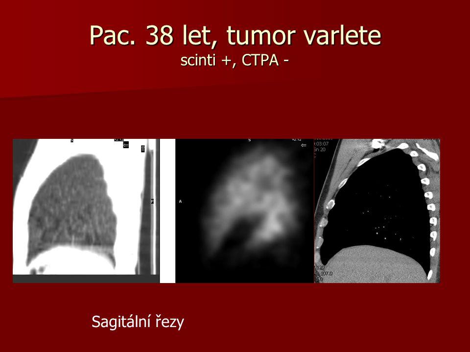 Pac. 38 let, tumor varlete scinti +, CTPA -