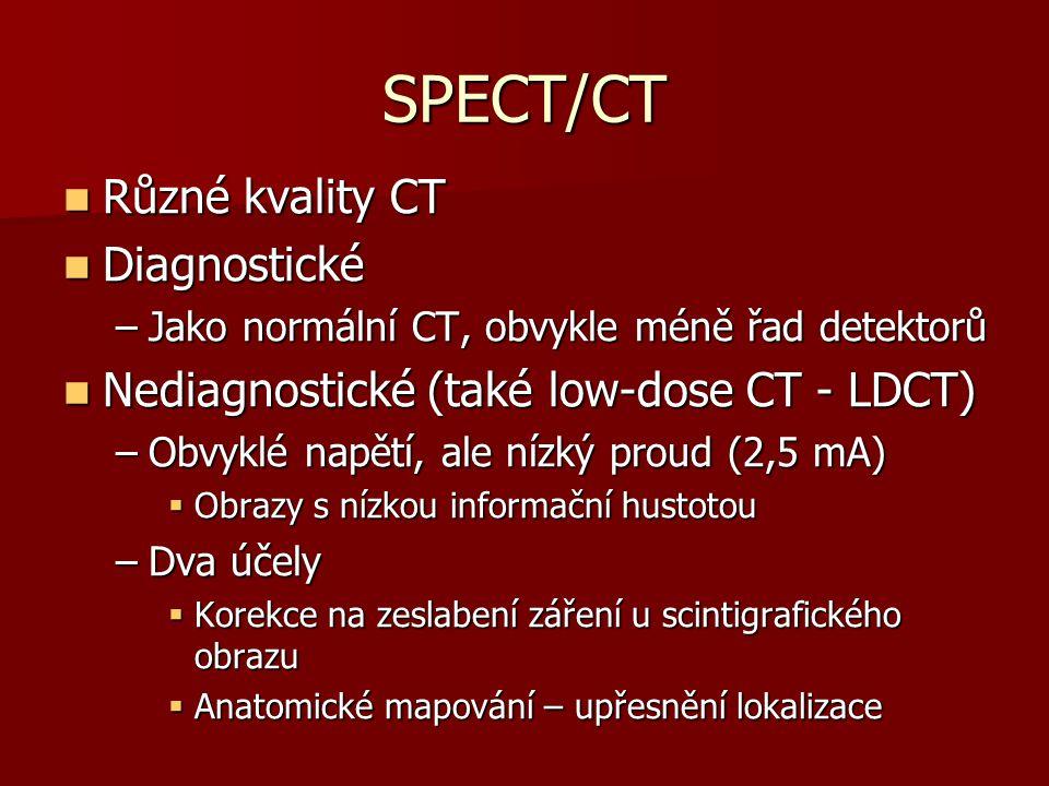 SPECT/CT Různé kvality CT Diagnostické