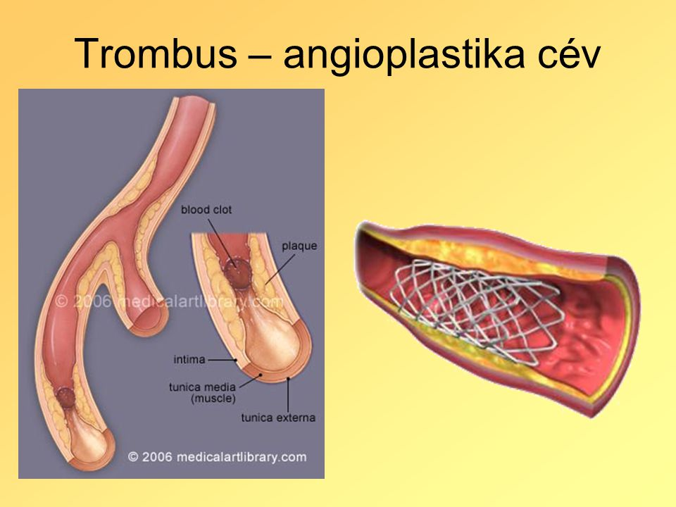 Trombus – angioplastika cév