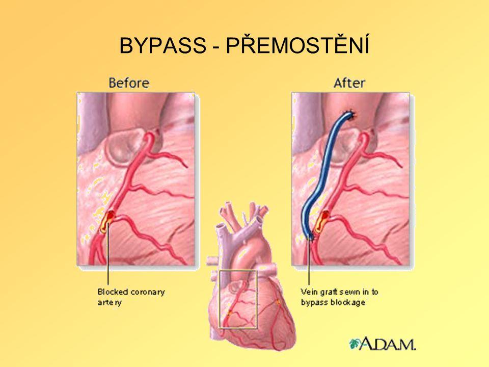 BYPASS - PŘEMOSTĚNÍ
