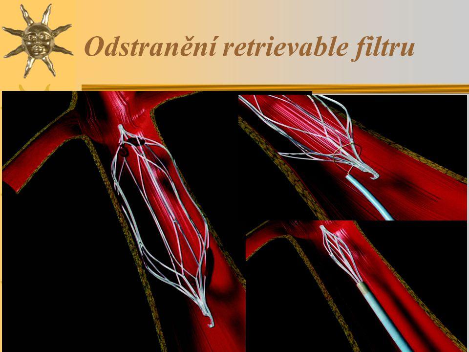 Odstranění retrievable filtru