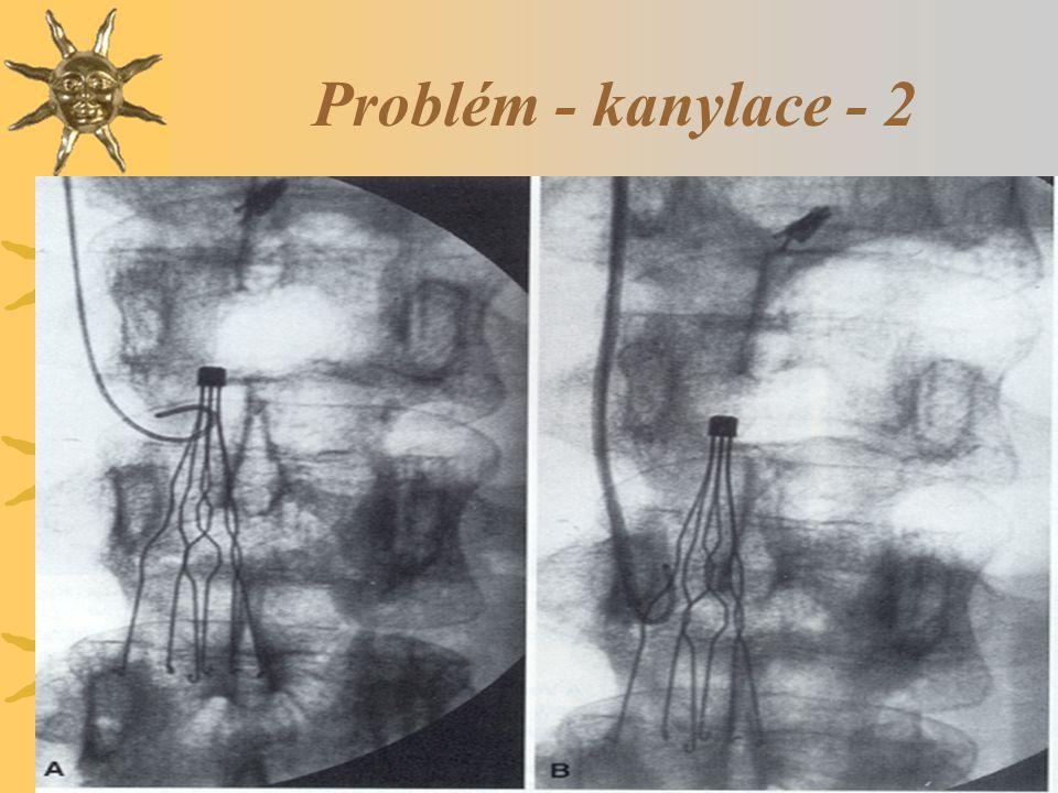 Problém - kanylace - 2