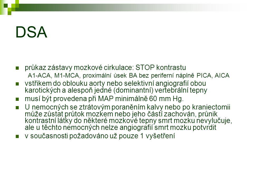DSA průkaz zástavy mozkové cirkulace: STOP kontrastu