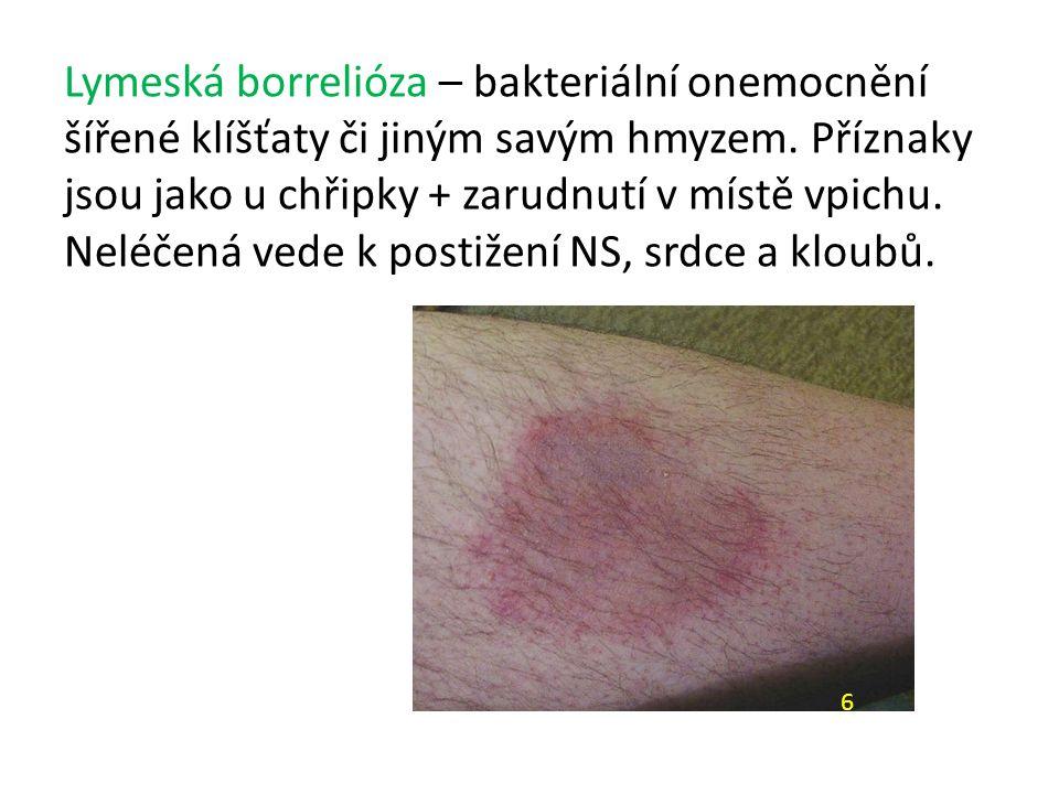 Lymeská borrelióza – bakteriální onemocnění šířené klíšťaty či jiným savým hmyzem. Příznaky jsou jako u chřipky + zarudnutí v místě vpichu. Neléčená vede k postižení NS, srdce a kloubů.