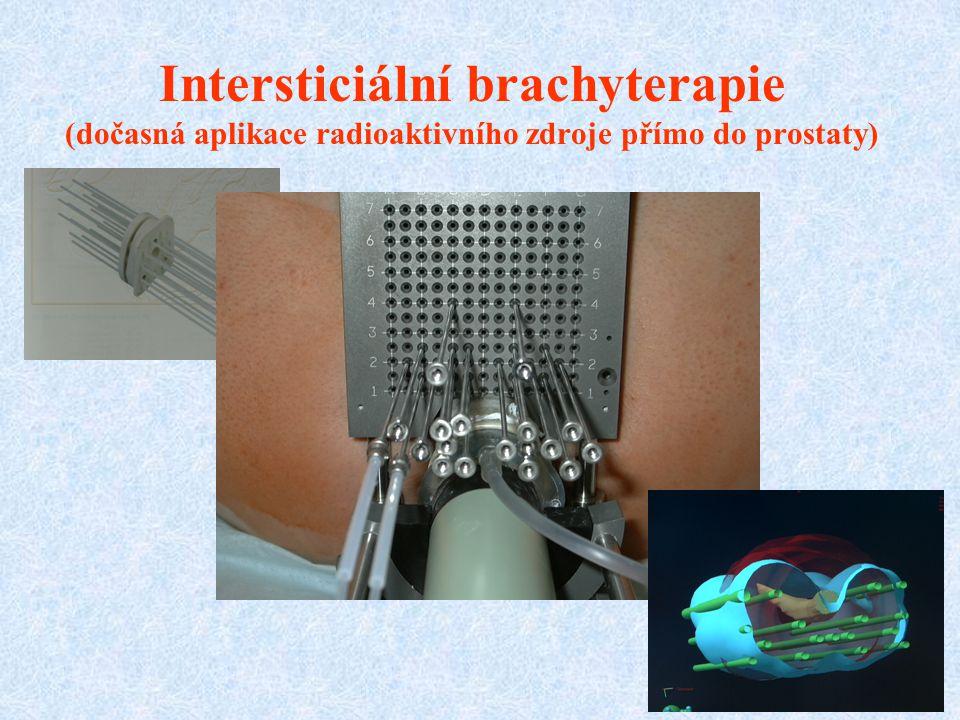 Intersticiální brachyterapie (dočasná aplikace radioaktivního zdroje přímo do prostaty)