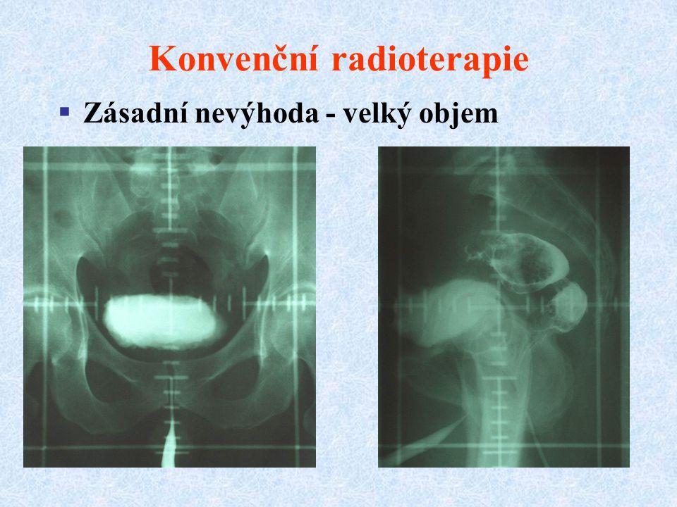 Konvenční radioterapie