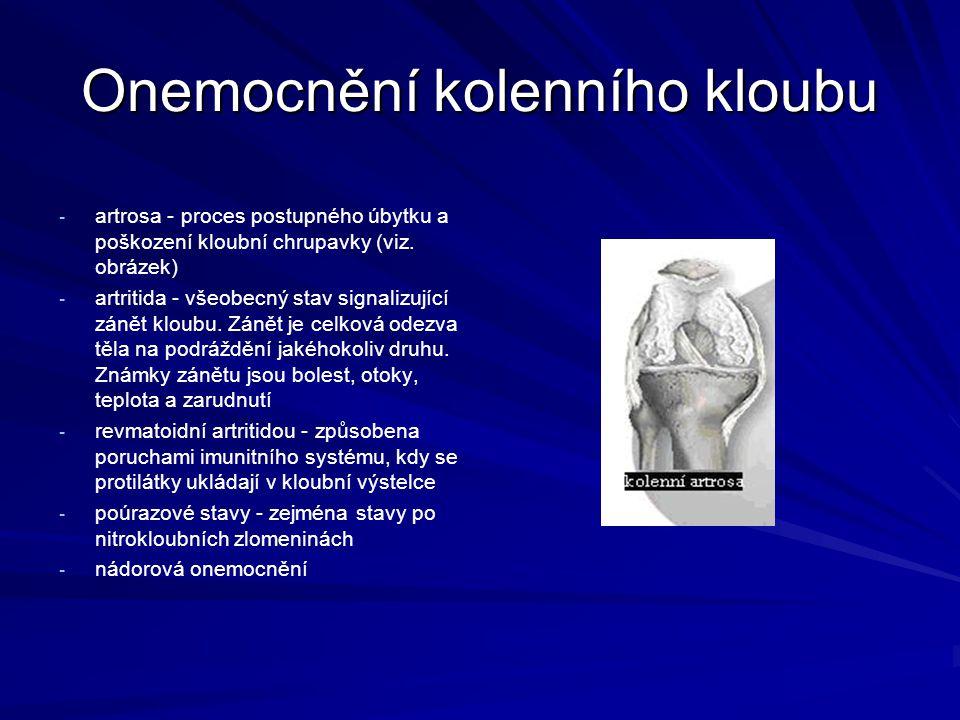 Onemocnění kolenního kloubu