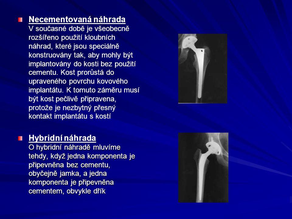 Necementovaná náhrada V současné době je všeobecně rozšířeno použití kloubních náhrad, které jsou speciálně konstruovány tak, aby mohly být implantovány do kosti bez použití cementu. Kost prorůstá do upraveného povrchu kovového implantátu. K tomuto záměru musí být kost pečlivě připravena, protože je nezbytný přesný kontakt implantátu s kostí