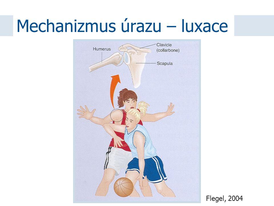 Mechanizmus úrazu – luxace