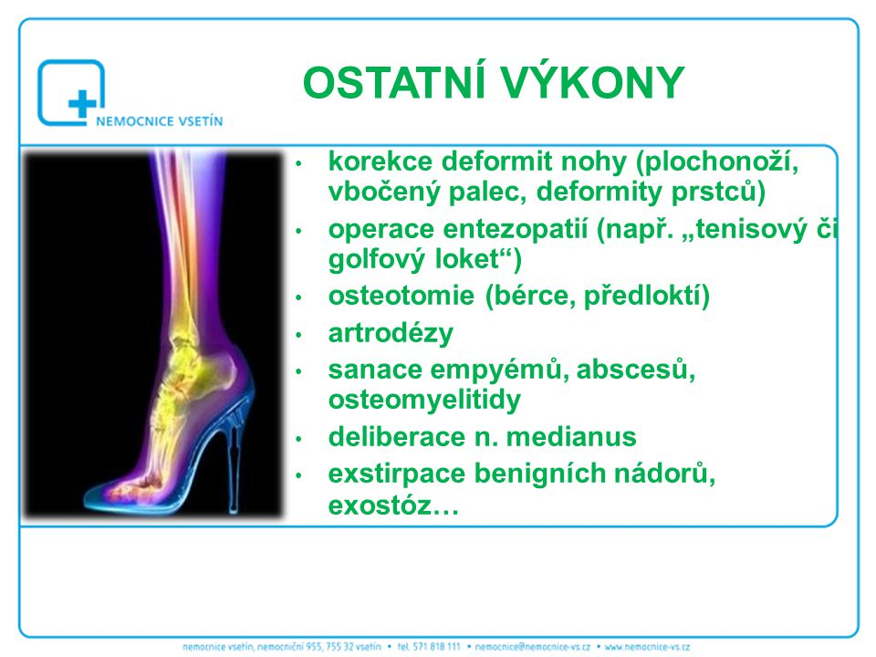 """OSTATNÍ VÝKONY korekce deformit nohy (plochonoží, vbočený palec, deformity prstců) operace entezopatií (např. """"tenisový či golfový loket )"""