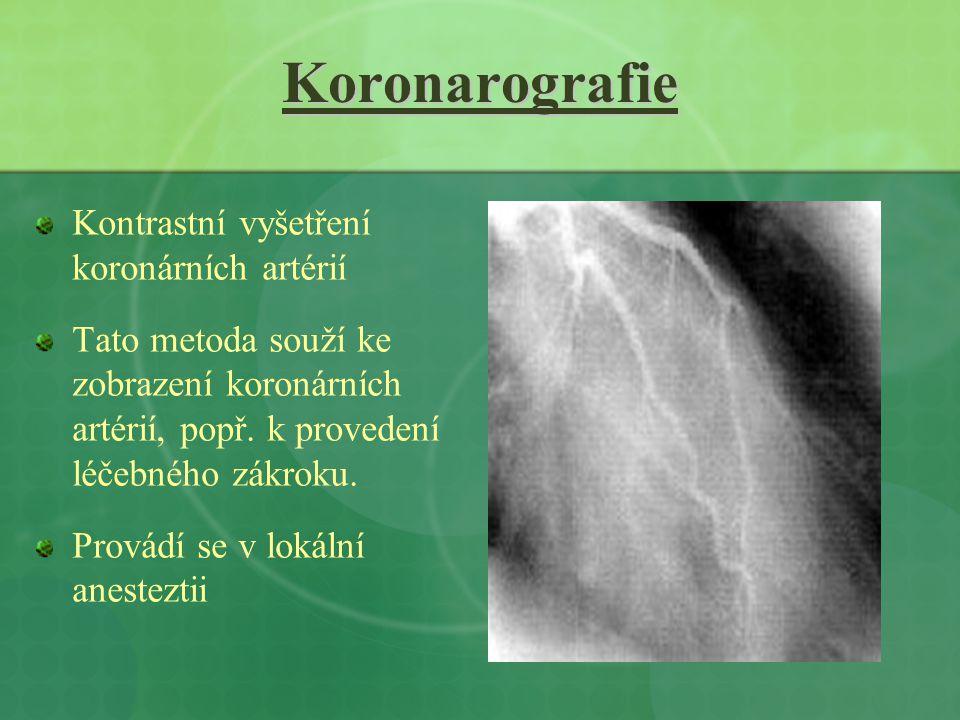 Koronarografie Kontrastní vyšetření koronárních artérií