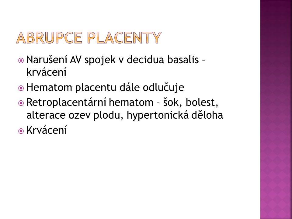 Abrupce placenty Narušení AV spojek v decidua basalis – krvácení