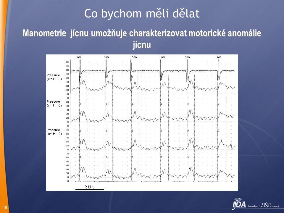 Manometrie jícnu umožňuje charakterizovat motorické anomálie jícnu