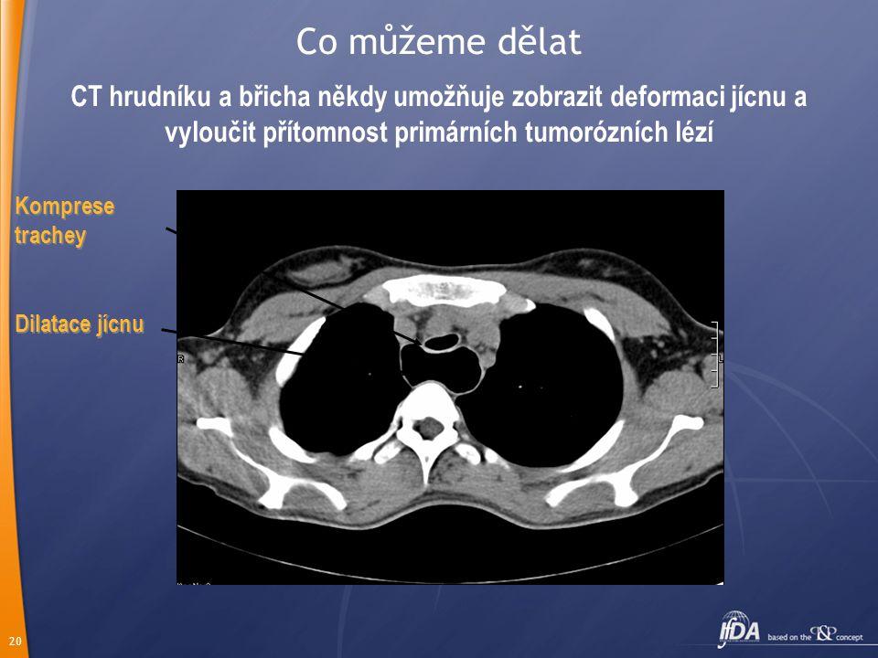 Co můžeme dělat CT hrudníku a břicha někdy umožňuje zobrazit deformaci jícnu a vyloučit přítomnost primárních tumorózních lézí.