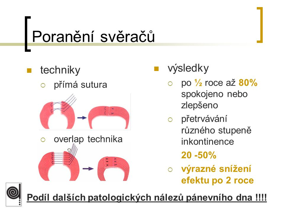 Podíl dalších patologických nálezů pánevního dna !!!!
