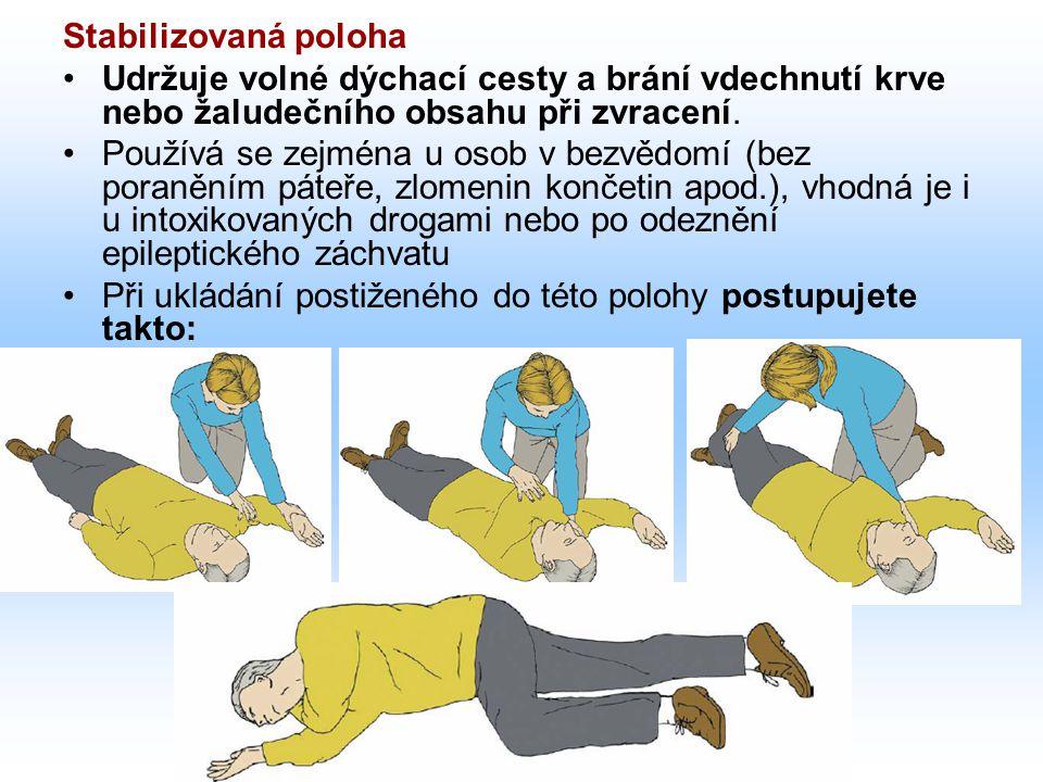 Stabilizovaná poloha Udržuje volné dýchací cesty a brání vdechnutí krve nebo žaludečního obsahu při zvracení.
