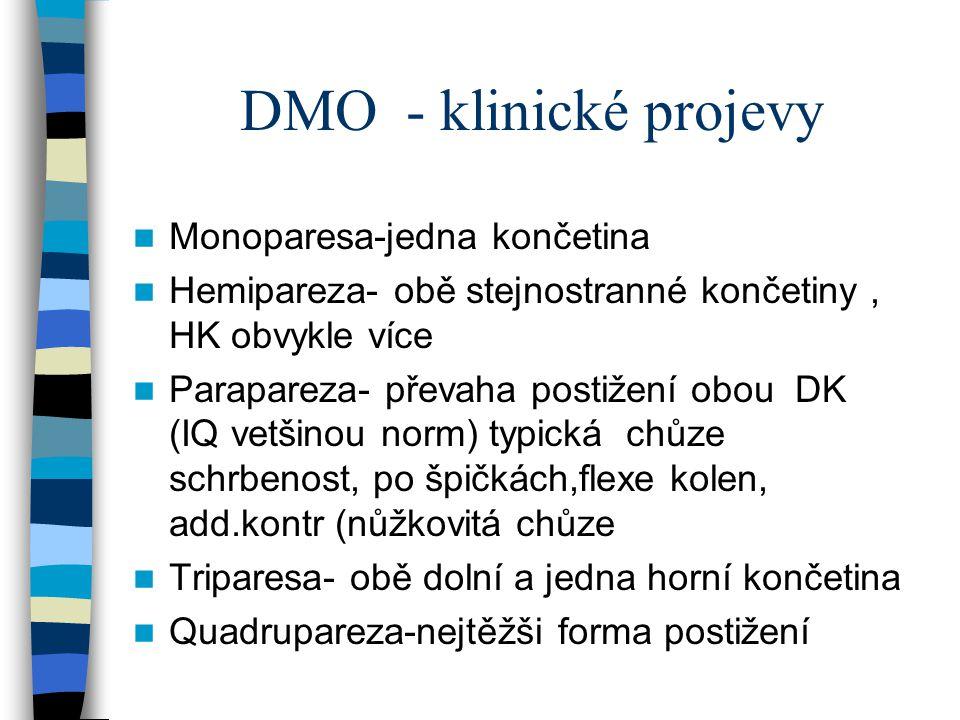 DMO - klinické projevy Monoparesa-jedna končetina
