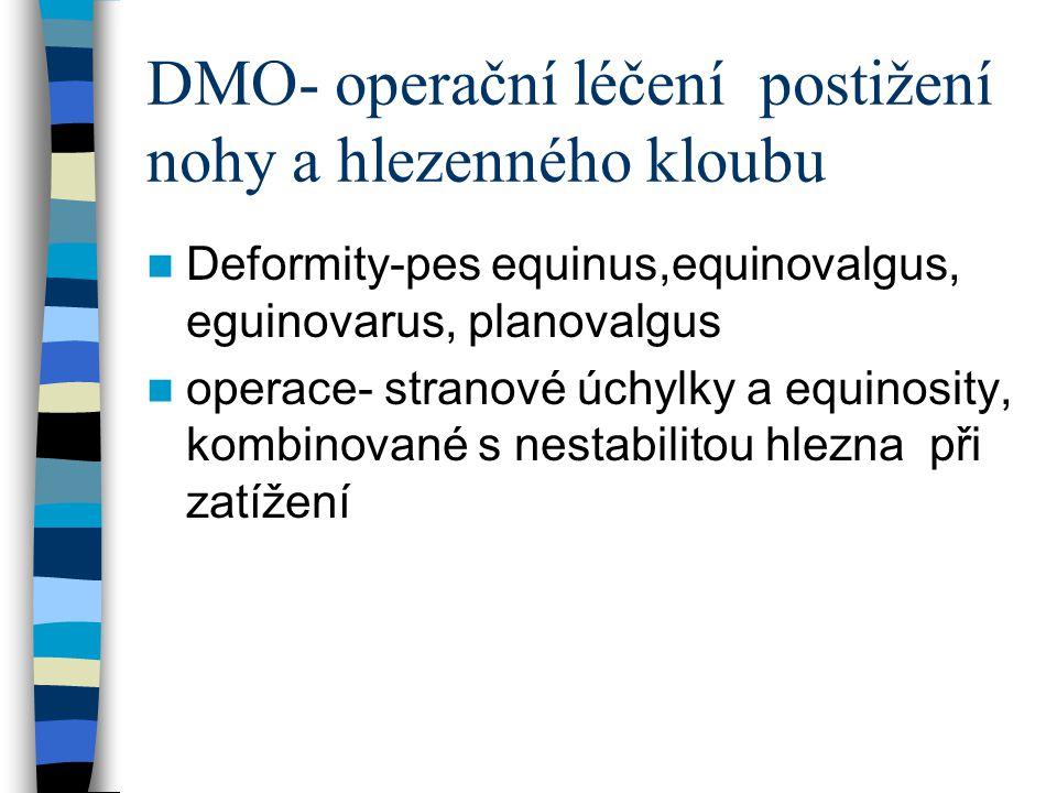 DMO- operační léčení postižení nohy a hlezenného kloubu