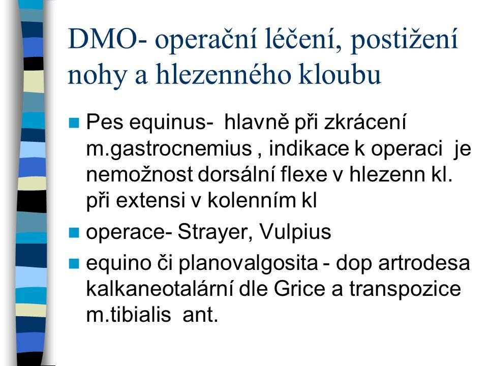 DMO- operační léčení, postižení nohy a hlezenného kloubu