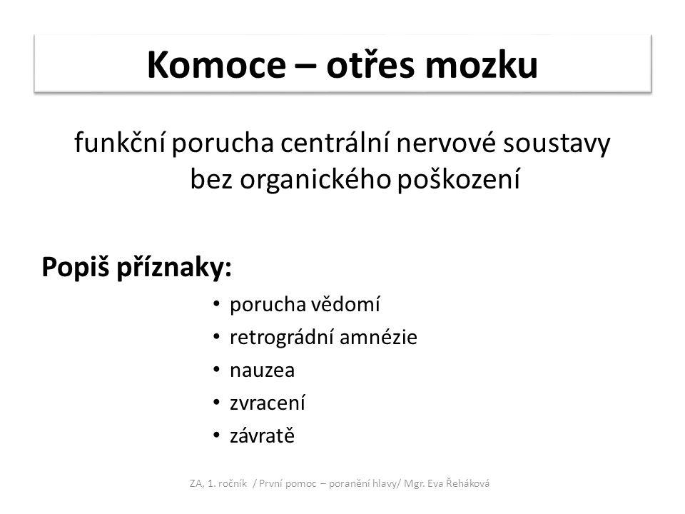 Komoce – otřes mozku funkční porucha centrální nervové soustavy bez organického poškození. Popiš příznaky: