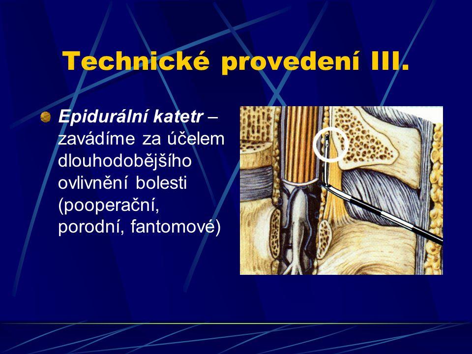 Technické provedení III.