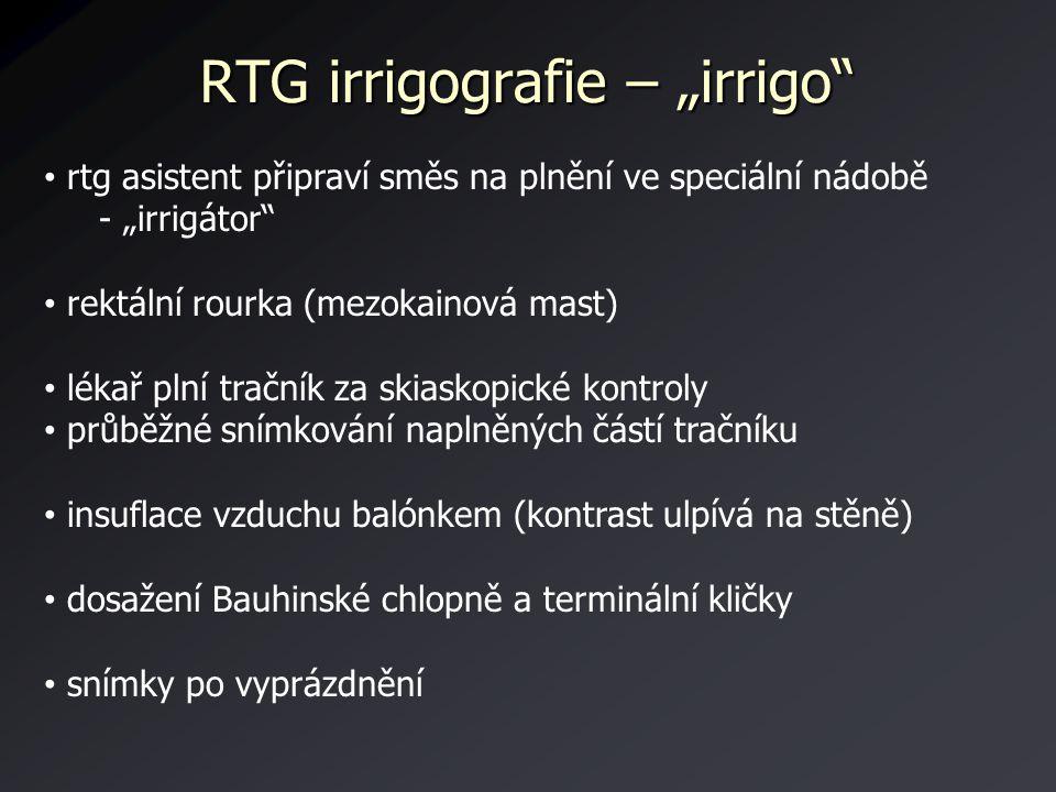 "RTG irrigografie – ""irrigo"