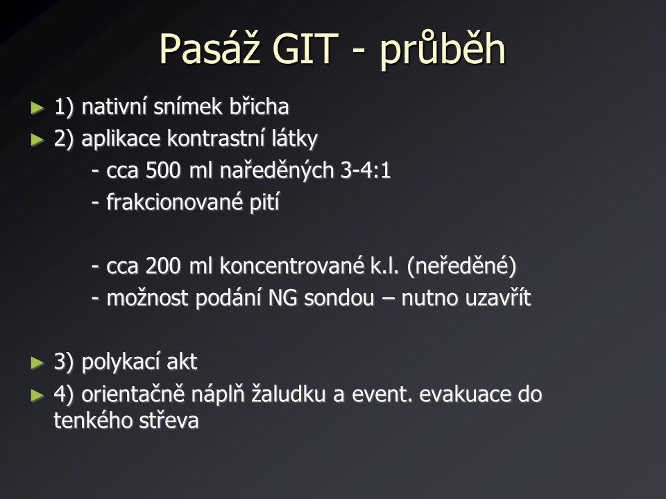 Pasáž GIT - průběh 1) nativní snímek břicha
