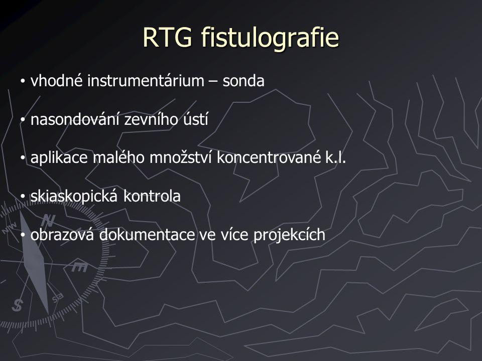 RTG fistulografie vhodné instrumentárium – sonda