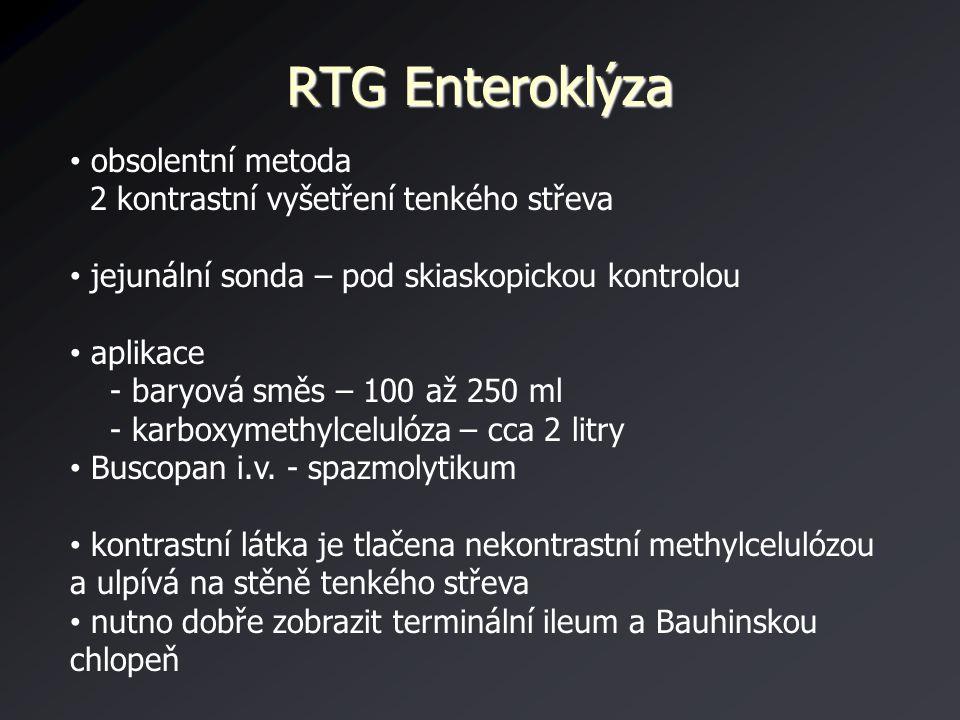 RTG Enteroklýza obsolentní metoda