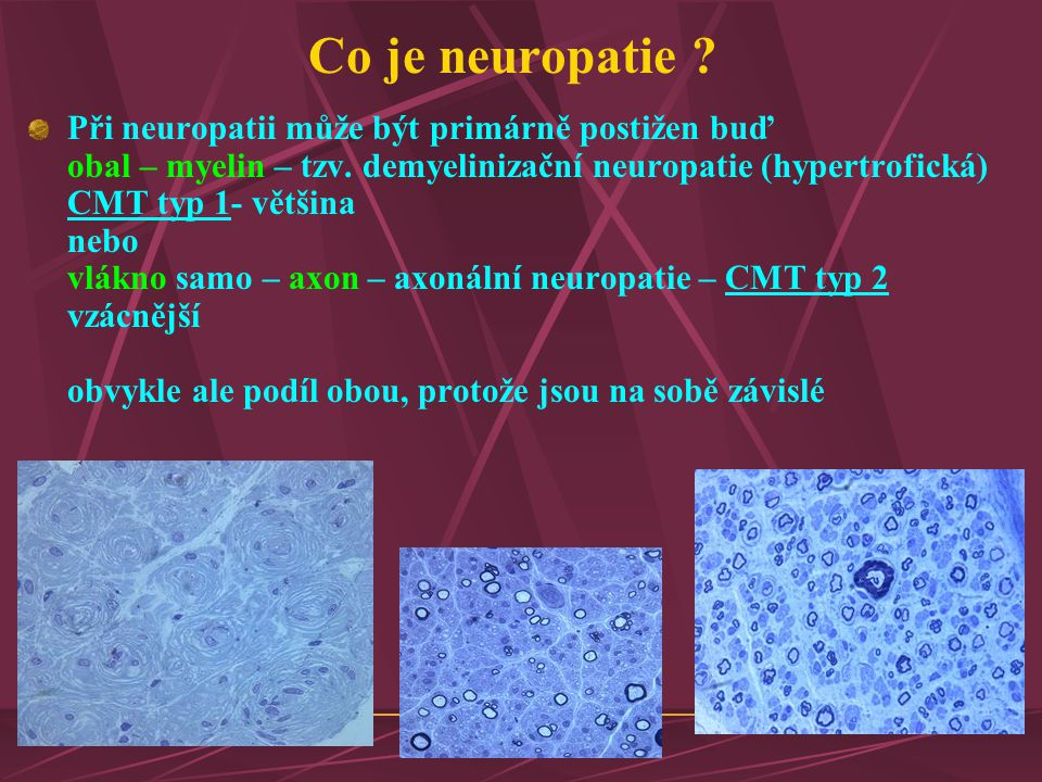 Co je neuropatie