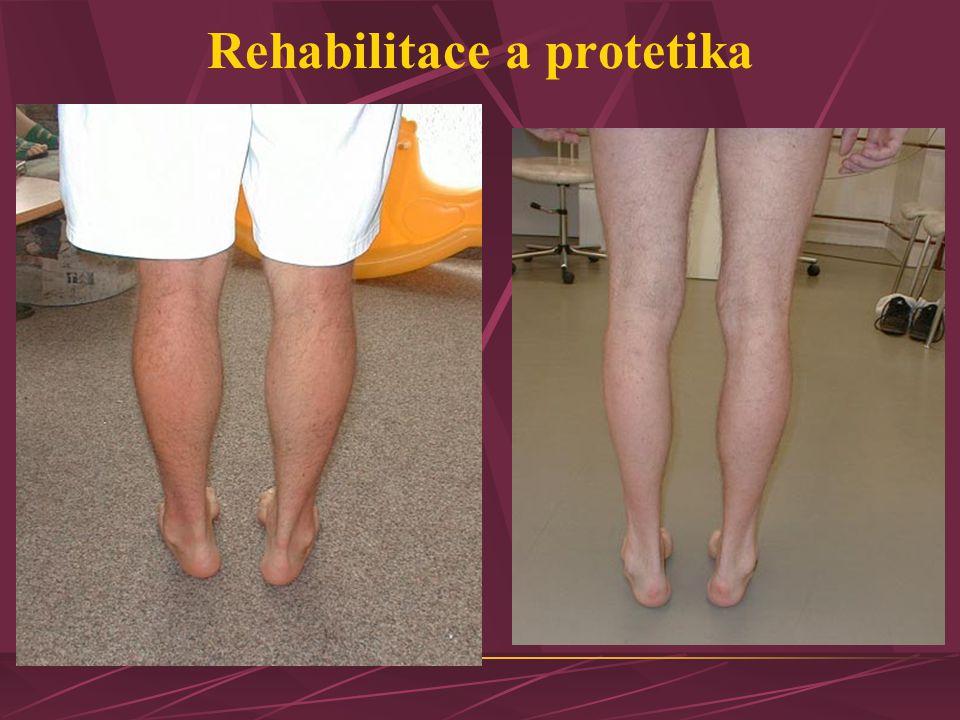 Rehabilitace a protetika