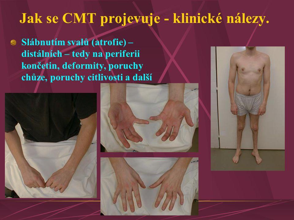 Jak se CMT projevuje - klinické nálezy.