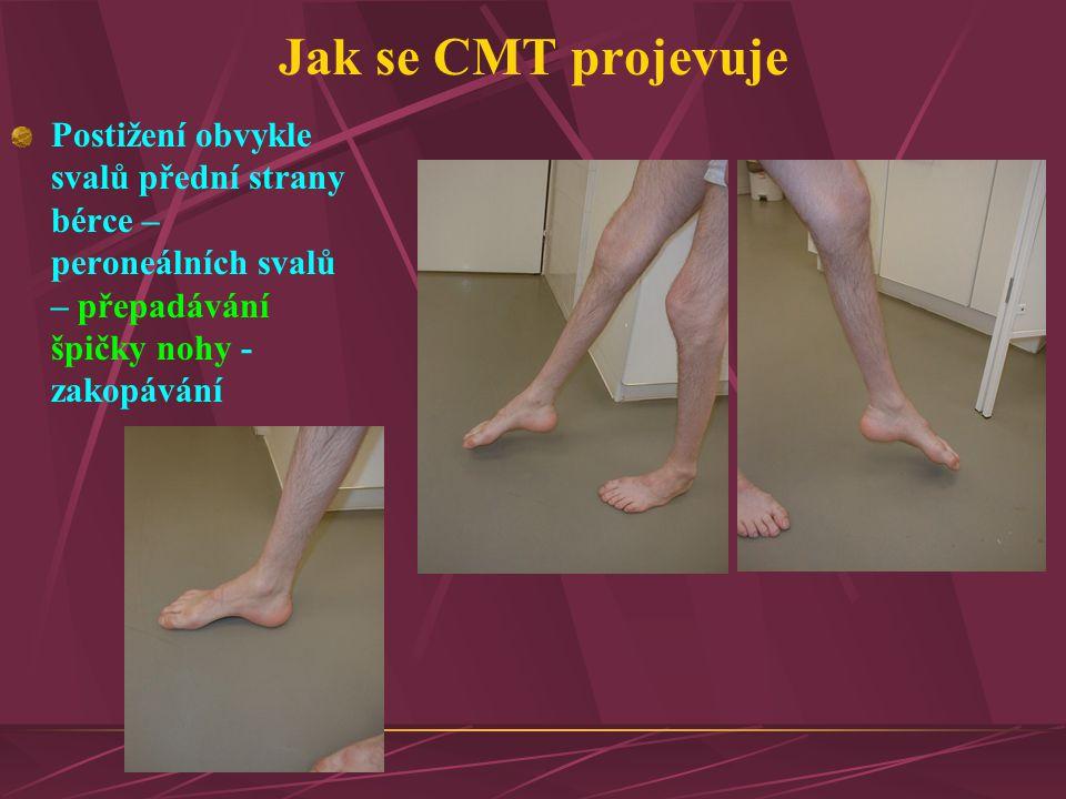 Jak se CMT projevuje Postižení obvykle svalů přední strany bérce – peroneálních svalů – přepadávání špičky nohy - zakopávání.