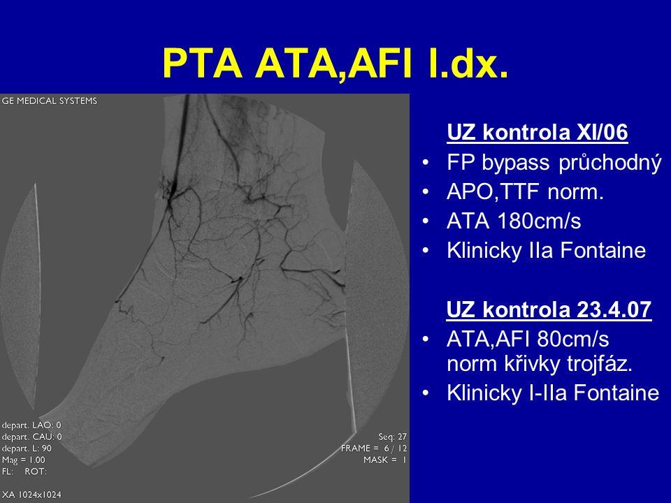 PTA ATA,AFI l.dx. UZ kontrola XI/06 FP bypass průchodný APO,TTF norm.