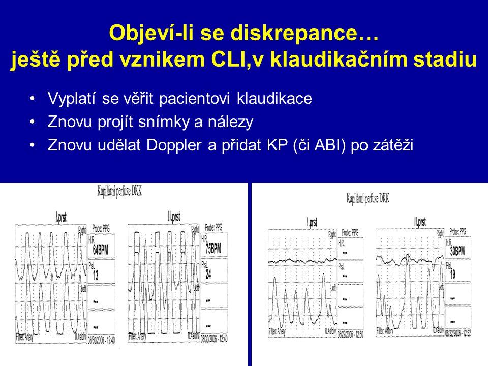 Objeví-li se diskrepance… ještě před vznikem CLI,v klaudikačním stadiu