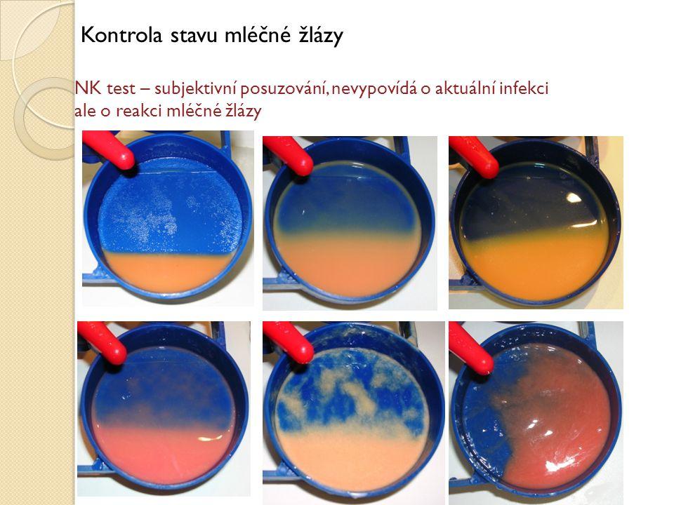Kontrola stavu mléčné žlázy NK test – subjektivní posuzování, nevypovídá o aktuální infekci ale o reakci mléčné žlázy