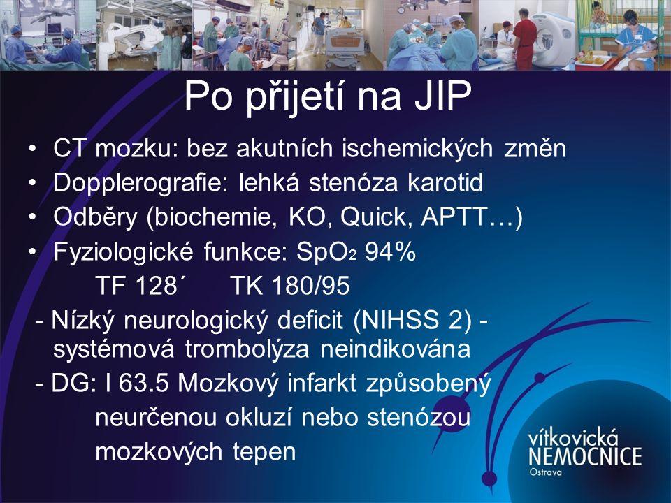 Po přijetí na JIP CT mozku: bez akutních ischemických změn