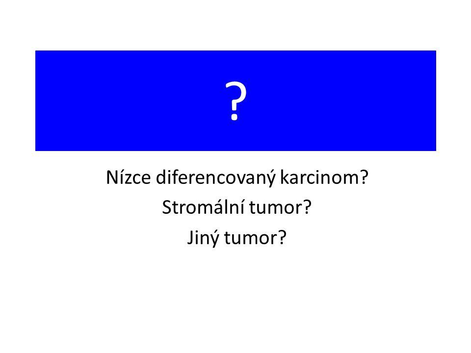 Nízce diferencovaný karcinom Stromální tumor Jiný tumor