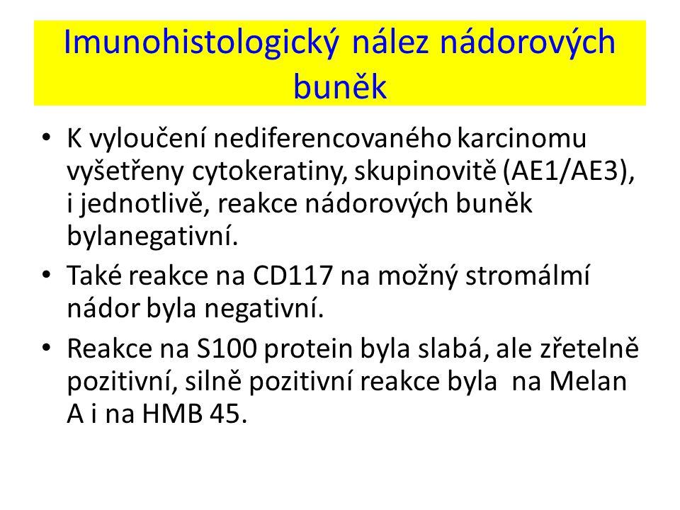Imunohistologický nález nádorových buněk