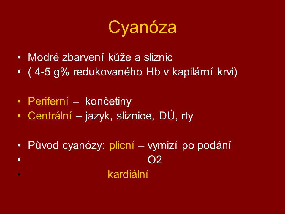 Cyanóza Modré zbarvení kůže a sliznic